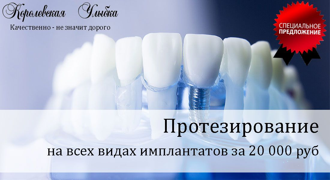 имплантация зубов клиника улыбка