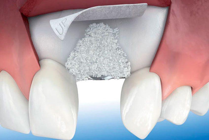 Применение костной пластики (остеопластики) в стоматологии