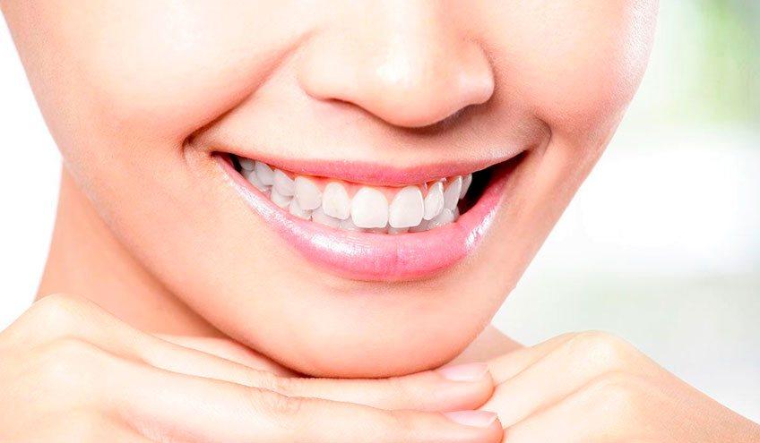 Профессиональное отбеливание зубов