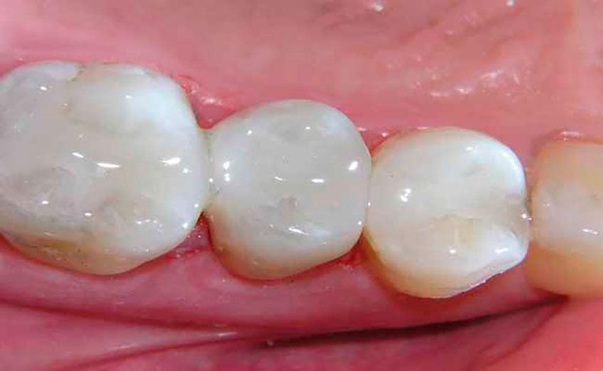 зубные виниры установка дома