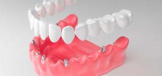 Протез на имплантатах: плюсы и минусы