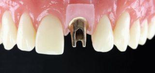 Имплантат переднего зуба: что отличает его от жевательных зубов?