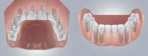 Зубные имплантаты: руководство по стоимости, рискам и долговечности