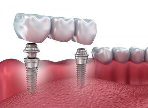 Сколько зубных имплантатов необходимо для постоянных и съемных протезов?