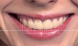 Виды эстетических стоматологических процедур