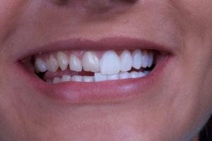 Голливудская улыбка<br><div class='desc-row-2' style=''>Как ее сделать?</div>