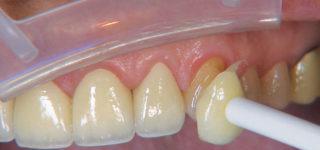 Косметическая реставрация зубов и ее особенности