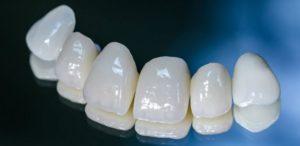 Безметалловые коронки на зубы<br><div class='desc-row-2' style=''>Виды, особенности и этапы установки</div>