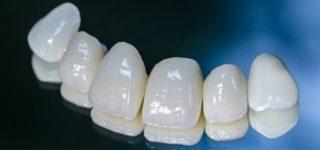 Безметалловые коронки на зубыВиды, особенности и этапы установки