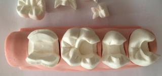 Пломбирование зубов: керамические вкладки вместо пломб