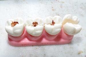 На процесс разрушения зубов влияет иммунная система