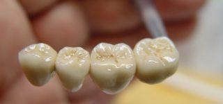 Зубной мост – один из видов несъемных протезов