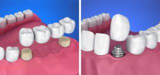Мероприятия по подготовке к имплантации зубов