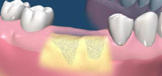 Наращивание костной ткани при имплантации