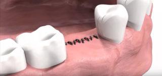 Альтернатива швам в стоматологии