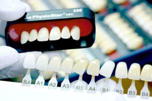 Какими бывают искусственные зубы?