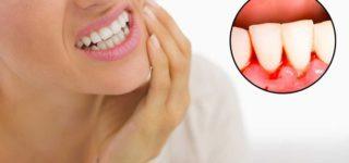 5 причин кровоточивости десен и способы лечения
