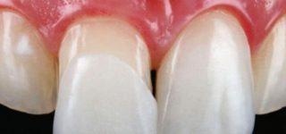 Виниры на передние зубы: что это такое?