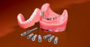 Балочный протез на имплантах: плюсы и минусы