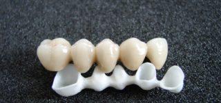 Циркониевые коронки или керамические: что лучше?
