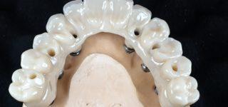 Протез на имплантах: особенности и материалы