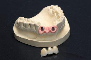 Мостовидные зубные протезы: показания и виды конструкций