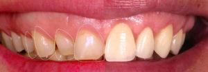 Для чего нужны виниры после лечения зубов?