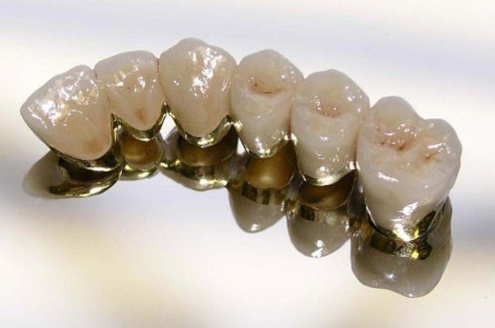 Защита прав потребителей эстетика коронок из металлокерамики