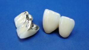 5 фактов о металлокерамике, которые вы не знали