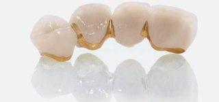 Металлокерамические коронки на основе сплава золота: плюсы и минусы