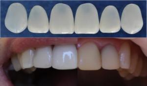 Read more about the article Современные способы эстетического восстановления зубов