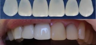 Современные способы эстетического восстановления зубов