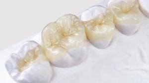 Зубные вкладки — что это и какие преимущества для пациента?