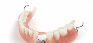 Достоинства и недостатки акриловых зубных протезов