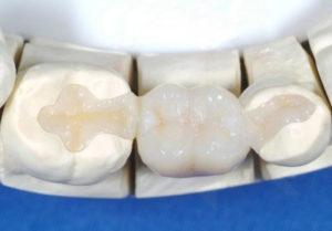 Особенности микропротезирование зубов в современной стоматологии