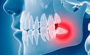 Что делать, когда болит зуб мудрости?