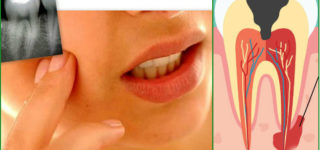 Основные причины зубной боли