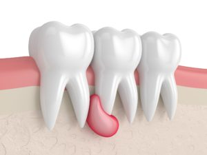 Удаление кисты зуба и особенности процедуры