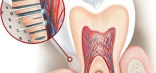 Гиперестезия зубных тканей