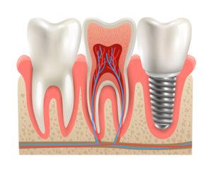 Как восстановить удаленные зубы после лечение гингивита и периодонтита?