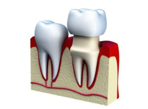 Read more about the article Почему болит зуб под коронкой?