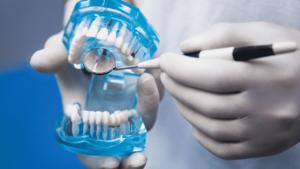 Как ухаживать за зубными коронками?