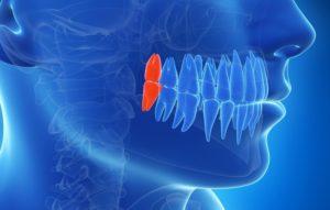 Как сохранить полость рта здоровой после прорезывания зубов мудрости?