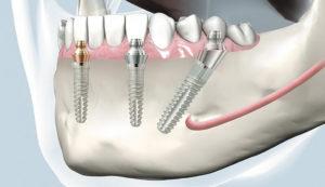 Попадает ли еда под зубные импланты?