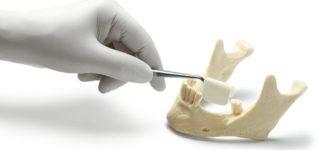 Что такое костная трансплантация?