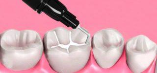 Для чего нужны зубные герметики?
