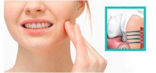 Что вызывает чувствительность зубов?