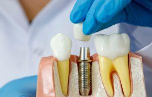 Read more about the article Нужно ли восстанавливать зуб, который не видно при улыбке?