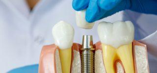 Нужно ли восстанавливать зуб, который не видно при улыбке?