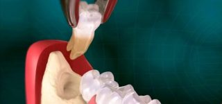 Удаление зубов мудрости: Каковы преимущества для здоровья?